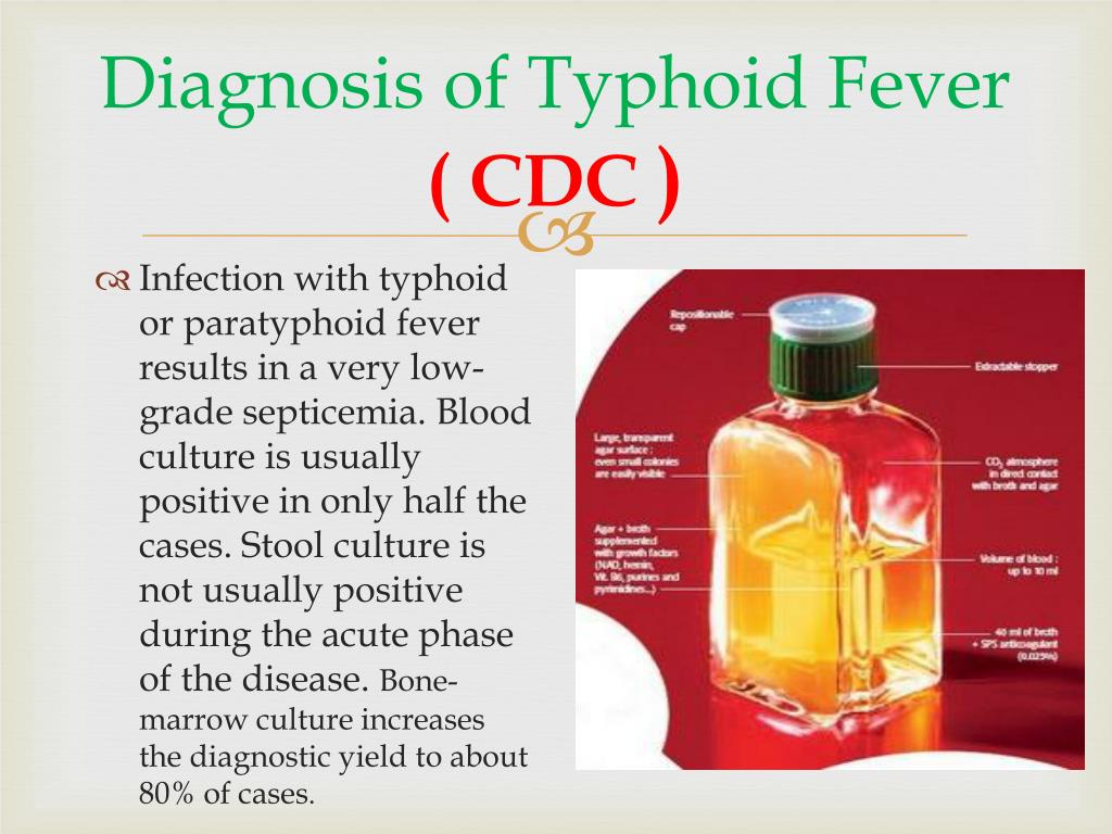 Diagnosis of Typhoid Fever