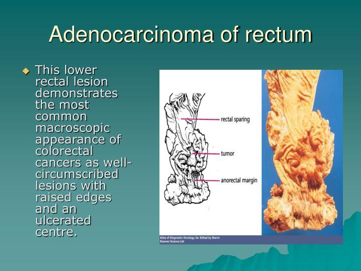 Adenocarcinoma of rectum