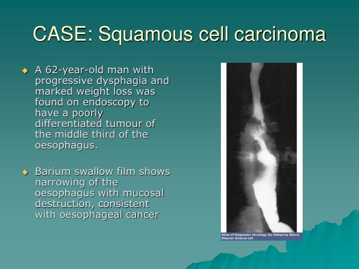 CASE: Squamous cell carcinoma