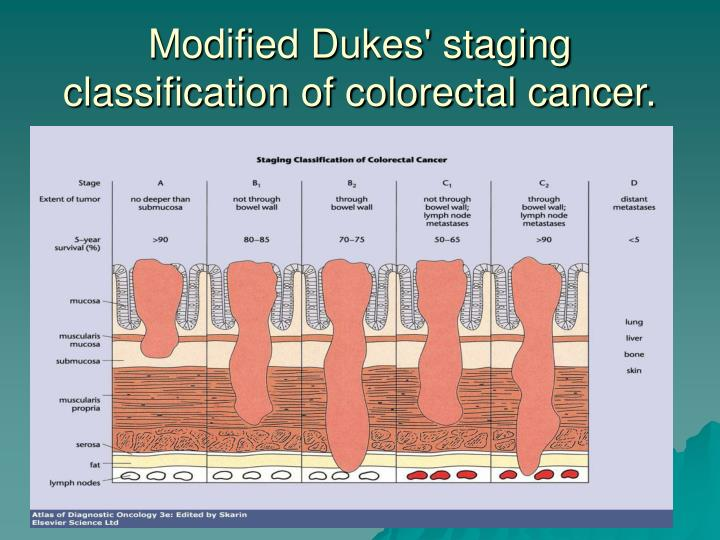 Modified Dukes' staging classification of colorectal cancer.