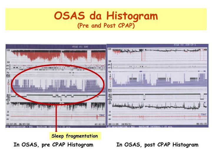 OSAS da Histogram