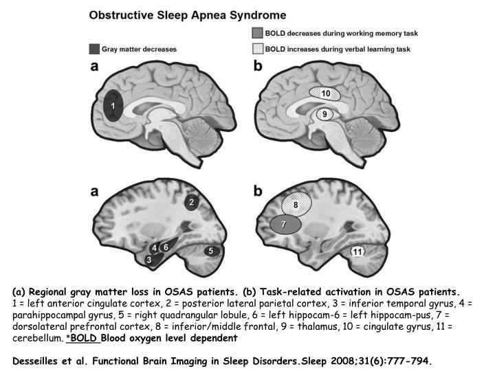 (a) Regional gray matter loss in OSAS patients.