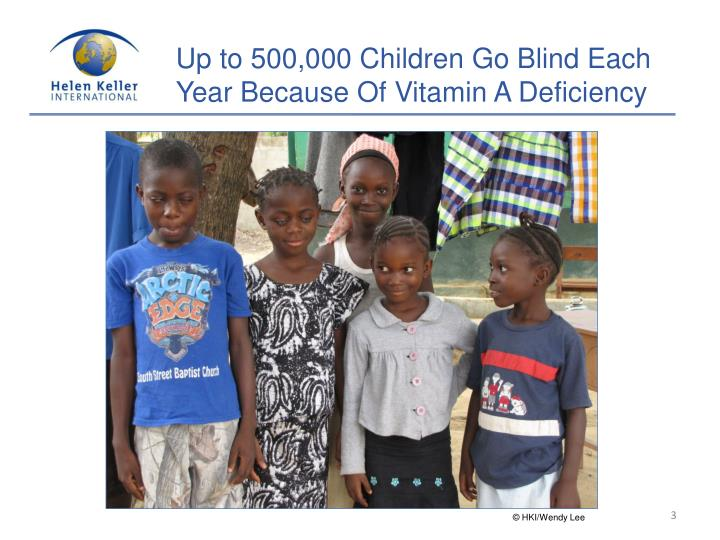 Up to 500,000 Children Go Blind Each Year Because Of Vitamin A Deficiency