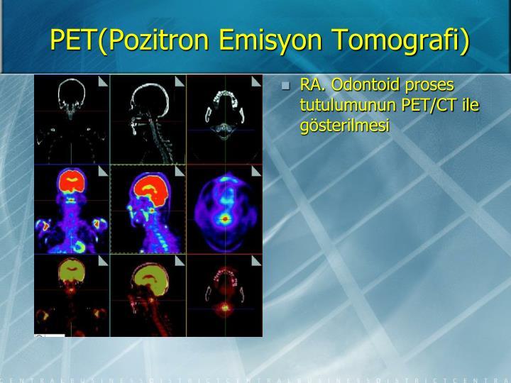 PET(Pozitron Emisyon Tomografi)