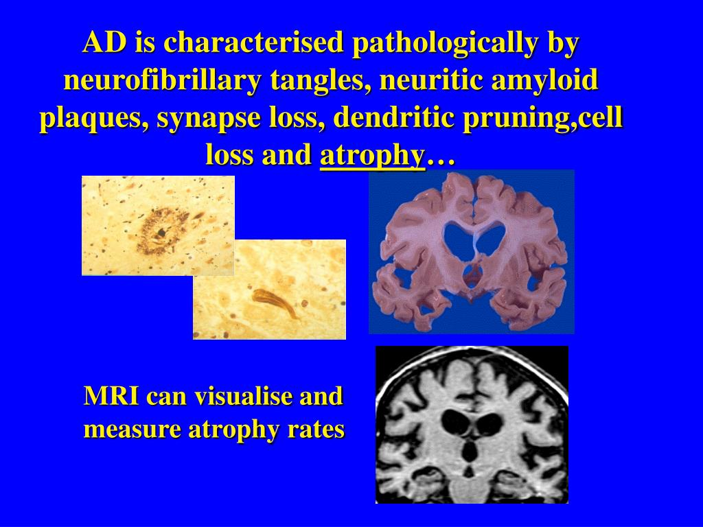 PPT - MRI, rates of atrophy and Alzheimer's disease