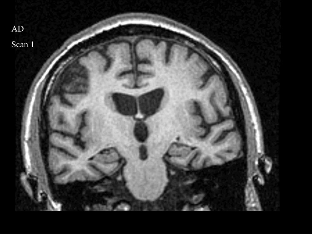 PPT - MRI, rates of atrophy and Alzheimer's disease PowerPoint