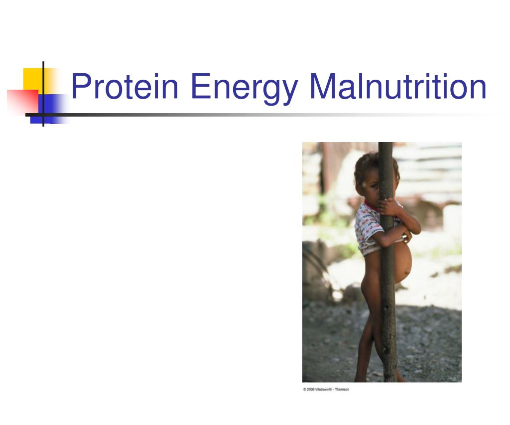 Protein Energy Malnutrition