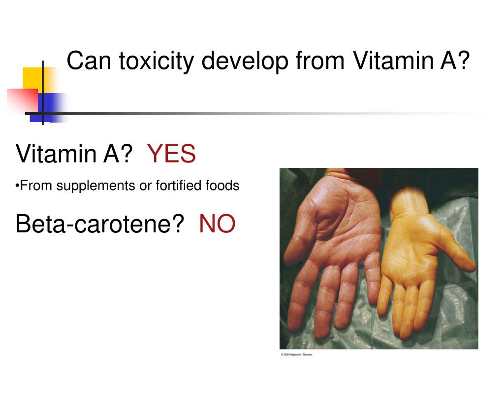 Can toxicity develop from Vitamin A?