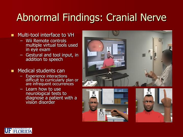 Abnormal Findings: Cranial Nerve