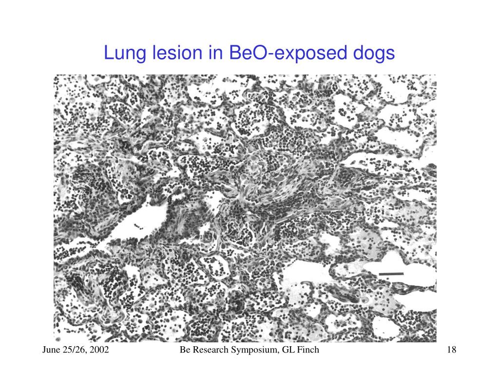 Lung lesion in BeO-exposed dogs