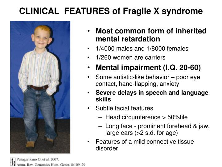 CLINICAL  FEATURES of Fragile X syndrome