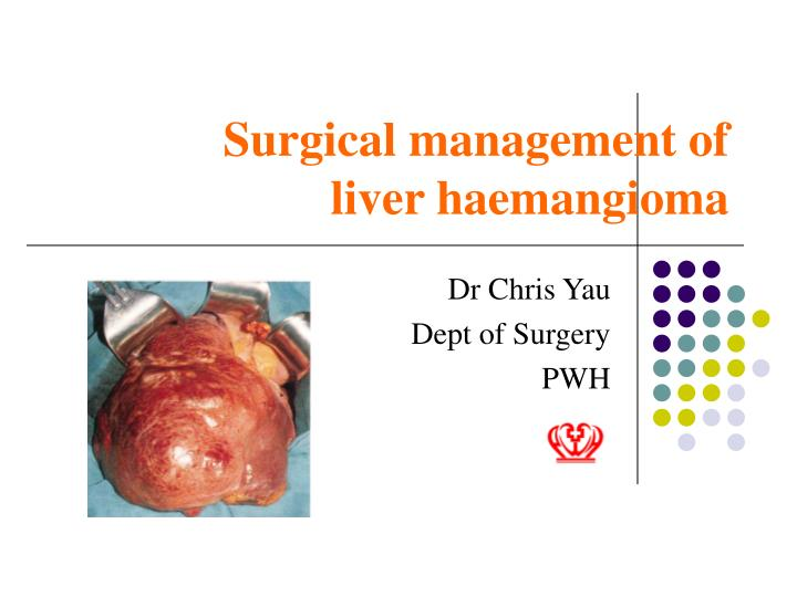 surgical management of liver haemangioma n.