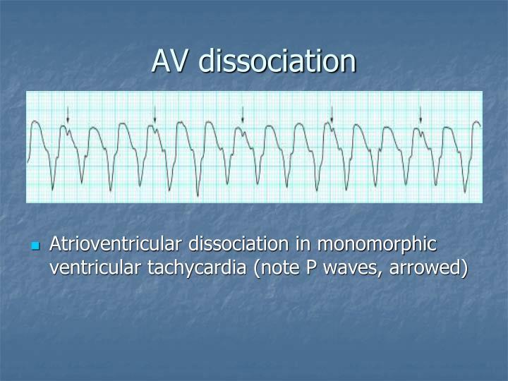 AV dissociation