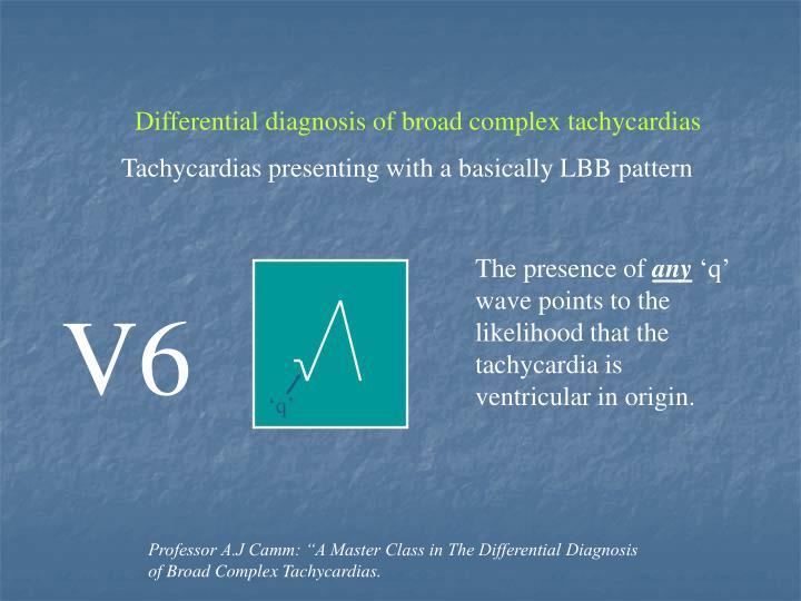 Differential diagnosis of broad complex tachycardias