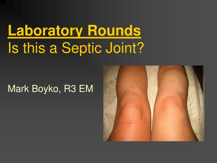 laboratory rounds is this a septic joint n.