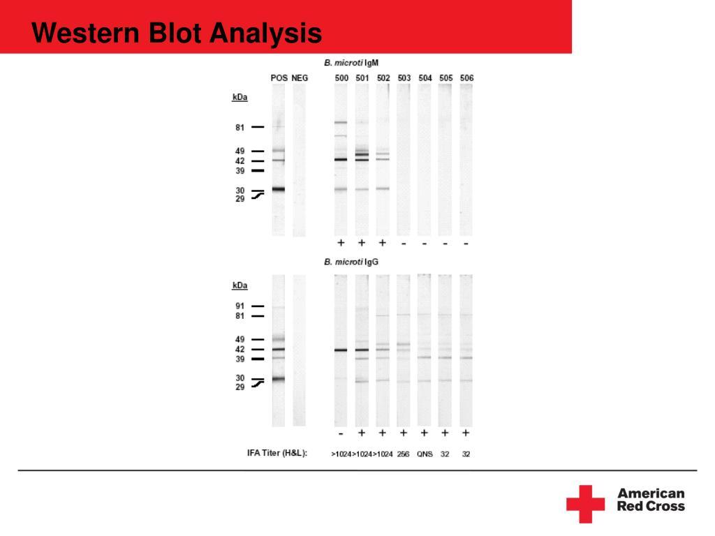 Western Blot Analysis