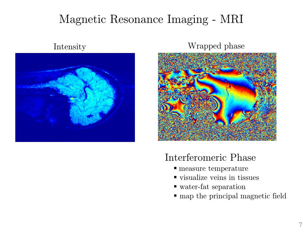 Magnetic Resonance Imaging - MRI
