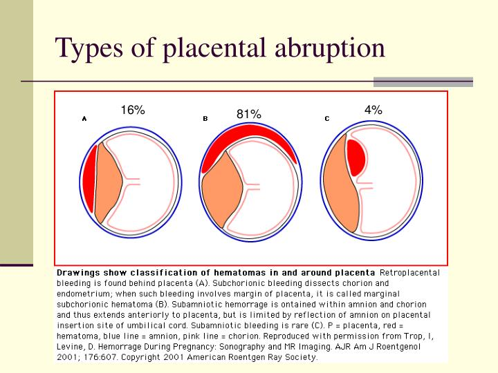 Types of placental abruption