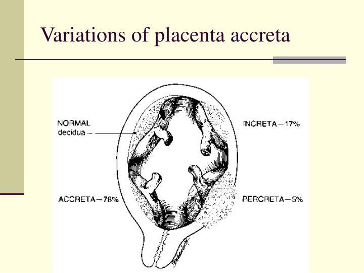 Variations of placenta accreta