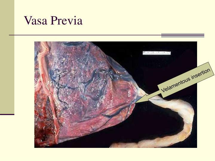 Vasa Previa