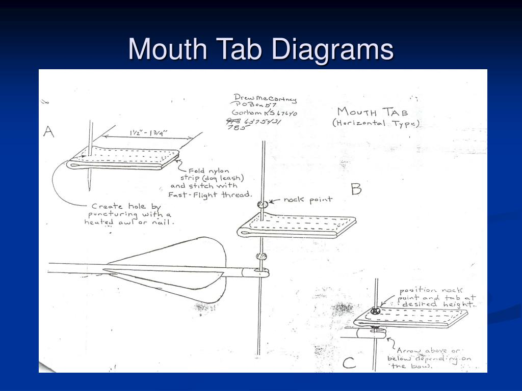 Mouth Tab Diagrams