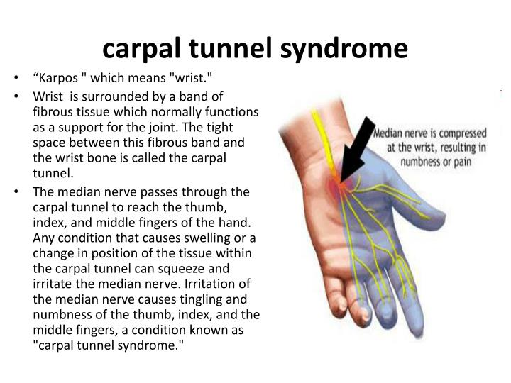 an analysis of the carpal tunnel syndrome in computer users Carpal tunnel syndrome as an occupational disease a meta-analysis by vender et al9 reached the frequency of carpal tunnel syndrome in computer users at a.