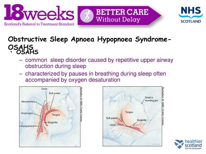 Obstructive Sleep Apnoea Hypopnoea Syndrome- OSAHS