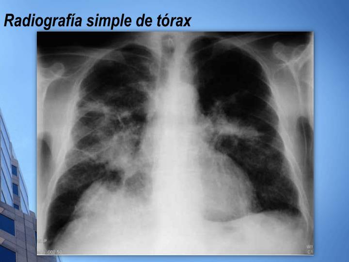 Radiografía simple de tórax
