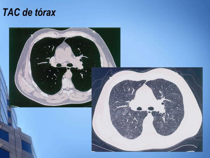 TAC de tórax