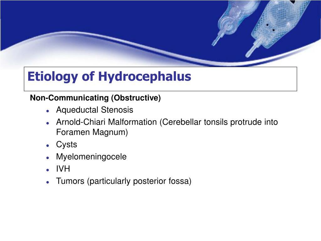 Etiology of Hydrocephalus