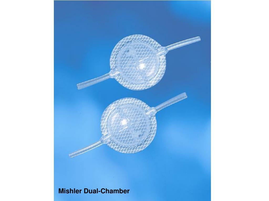 Mishler Dual-Chamber
