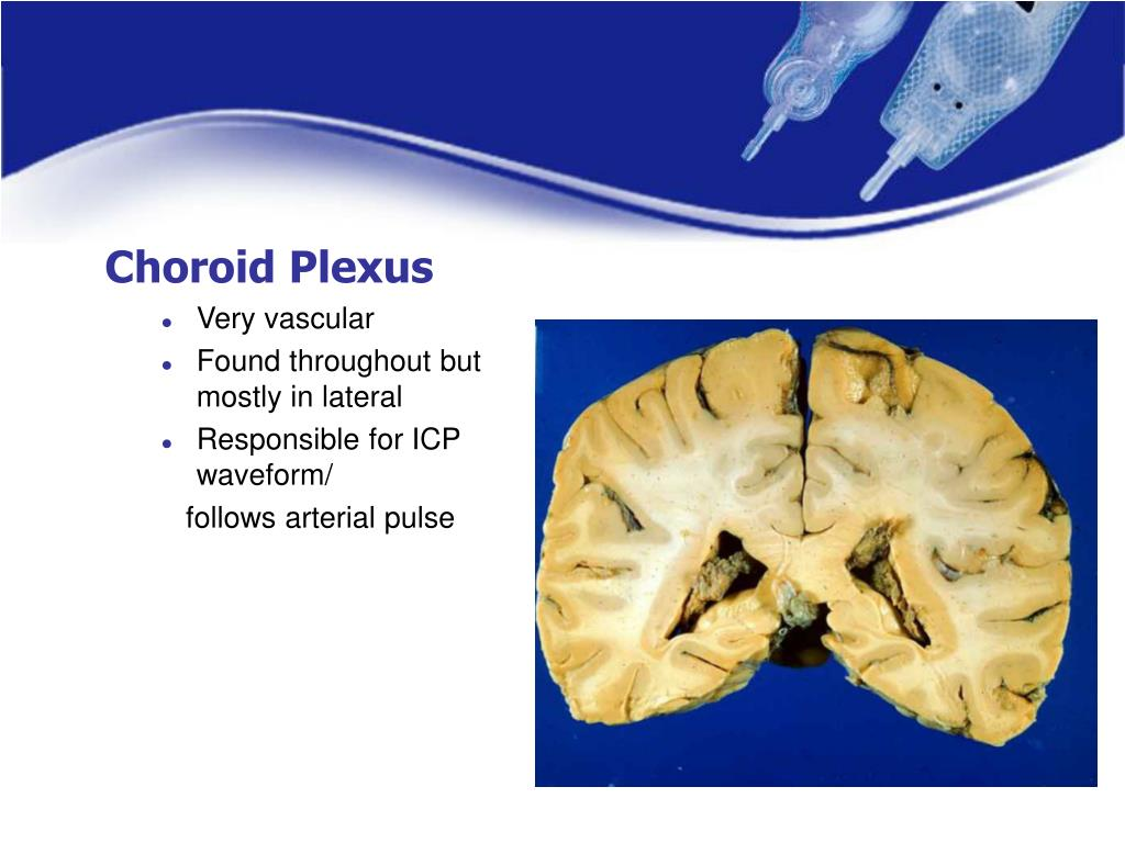 Choroid Plexus