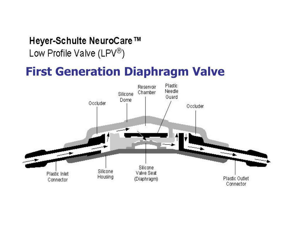 First Generation Diaphragm Valve