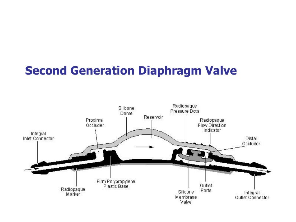 Second Generation Diaphragm Valve