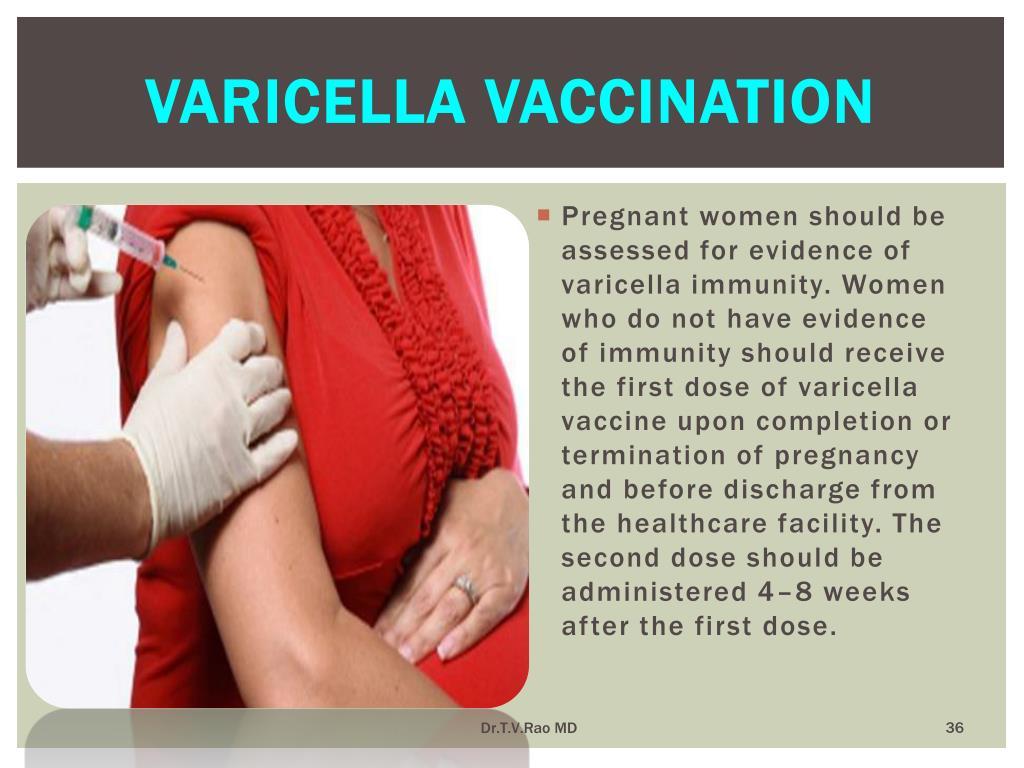 Varicella vaccination