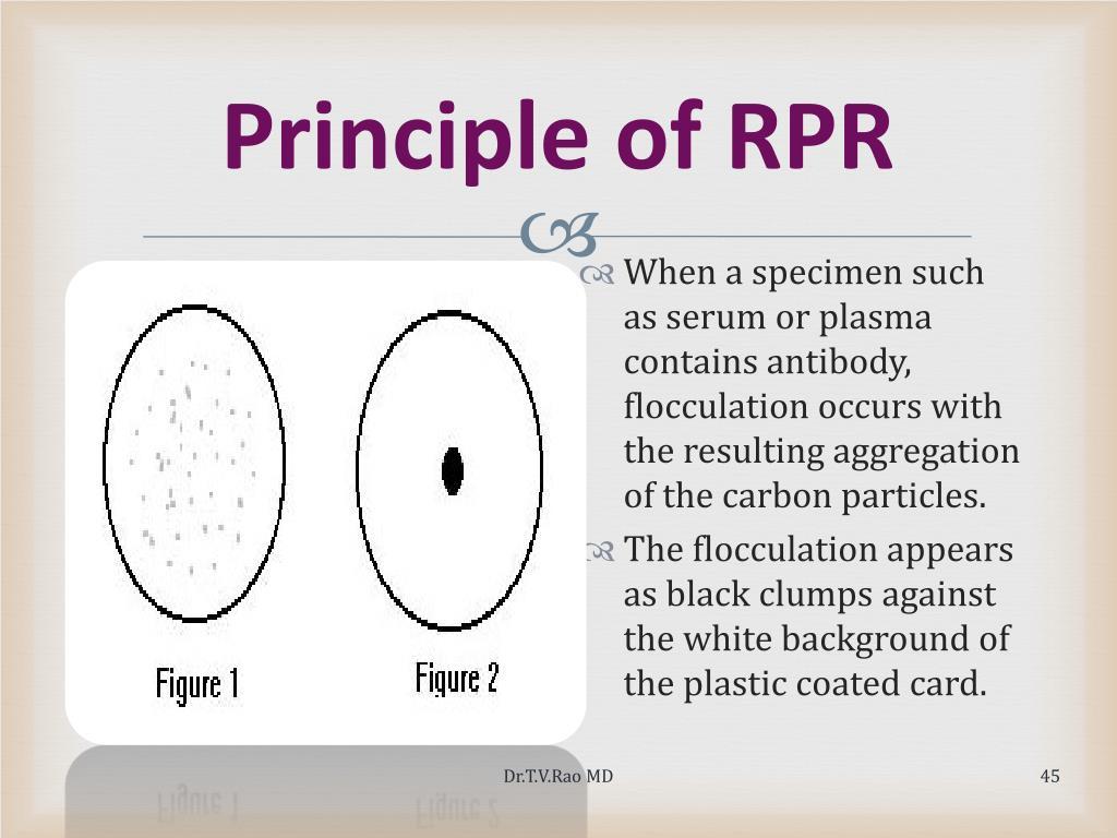 Principle of RPR