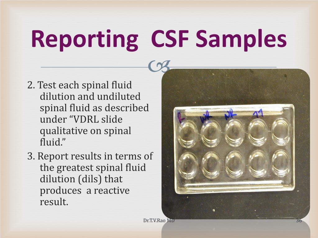 Reporting  CSF Samples