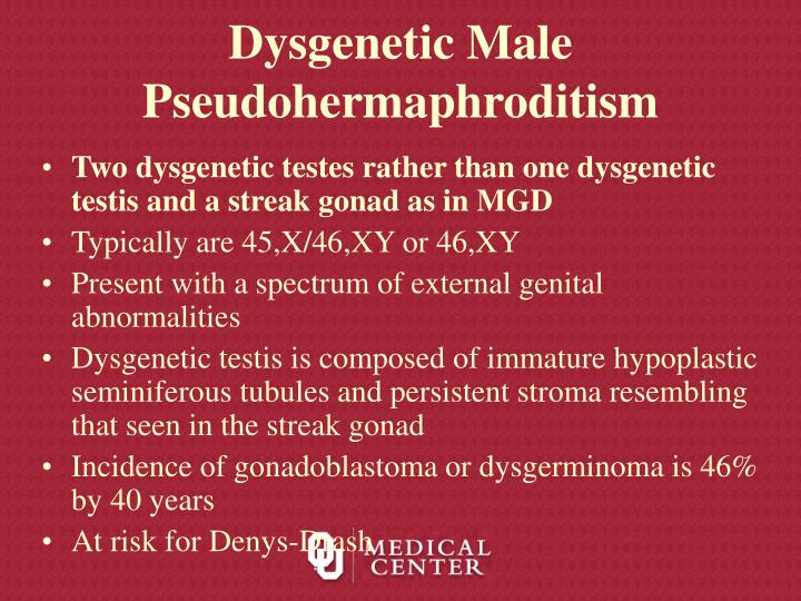 Dysgenetic Male Pseudohermaphroditism