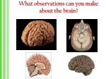 what observations can you make about the brain