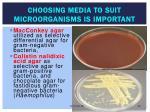 choosing media to suit microorganisms is important
