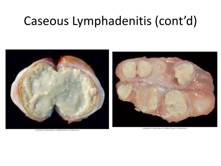 Corynebacterium Pseudotuberculosis Infection  DoveMed