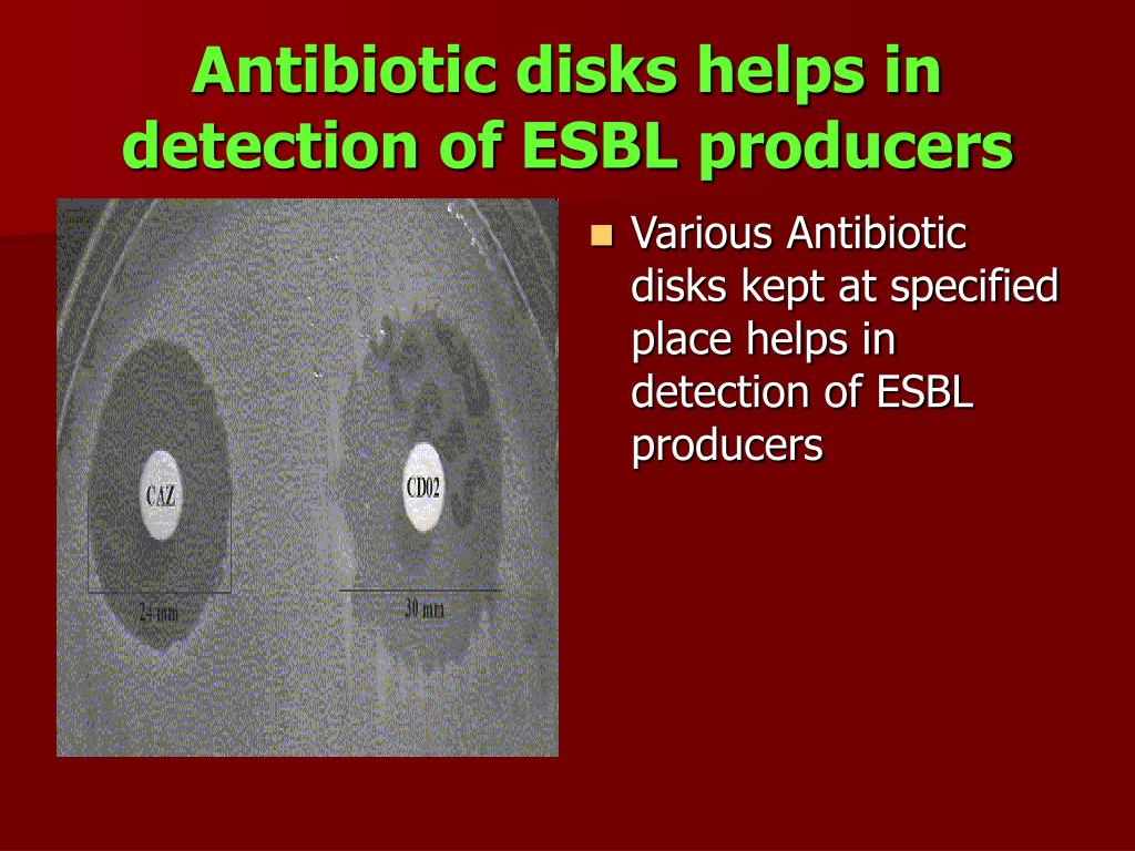 Antibiotic disks helps in detection of ESBL producers