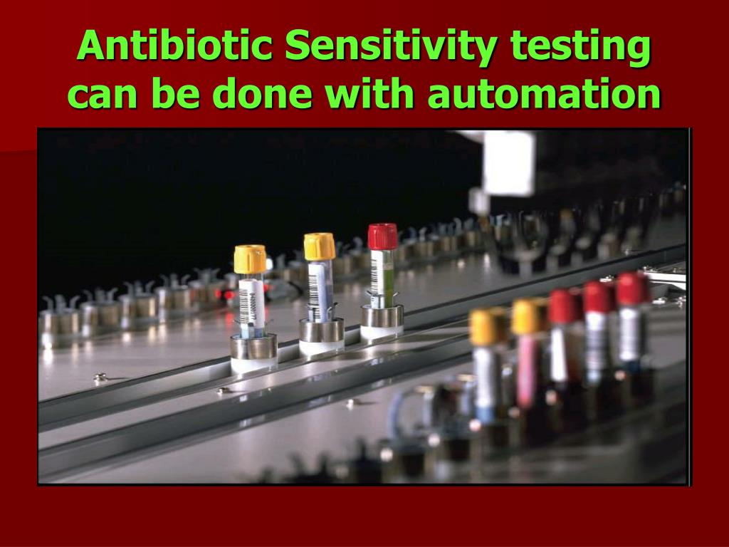 Antibiotic Sensitivity testing can be done with automation