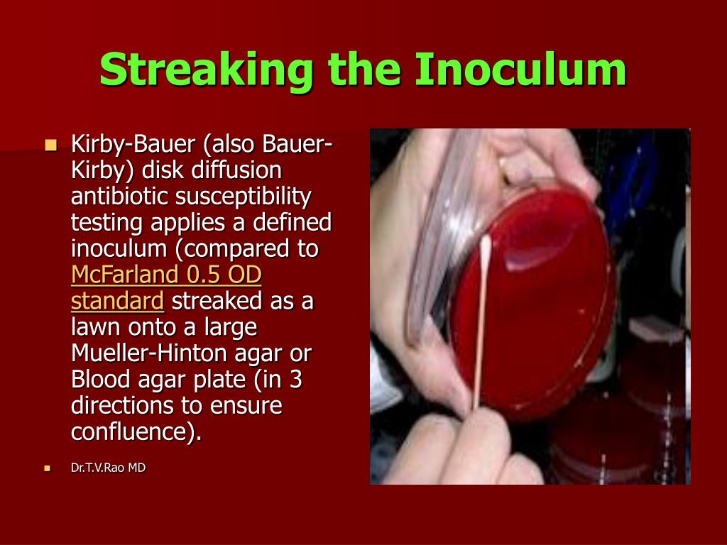 Streaking the Inoculum