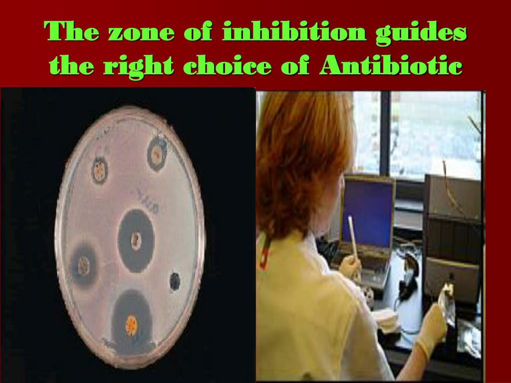 The zone of inhibition guides the right choice of Antibiotic