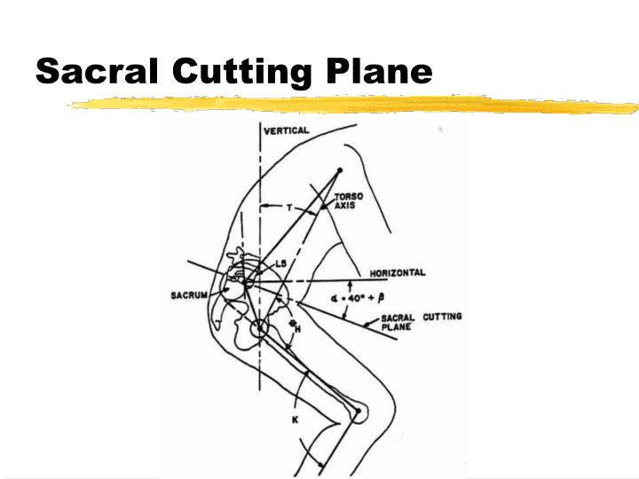 Sacral Cutting Plane