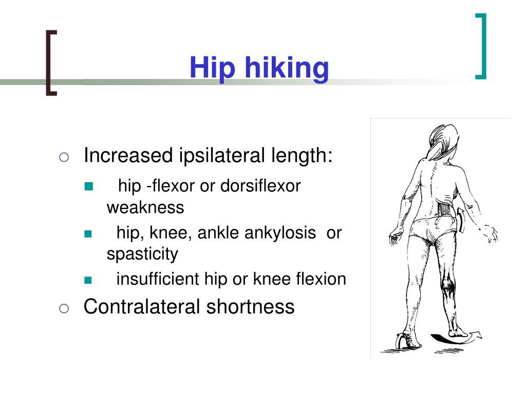 PPT Gait Gait Aids PowerPoint Presentation ID1120864Quadriceps Tendon Pain