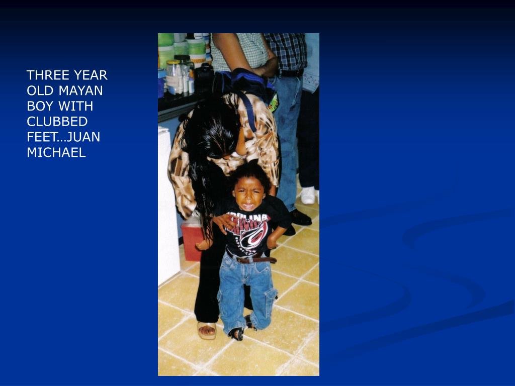 THREE YEAR OLD MAYAN BOY WITH CLUBBED FEET…JUAN MICHAEL