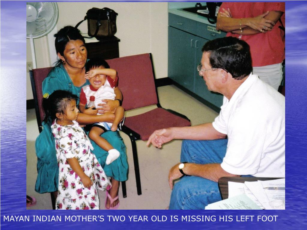 MAYAN INDIAN MOTHER'S TWO YEAR OLD IS MISSING HIS LEFT FOOT