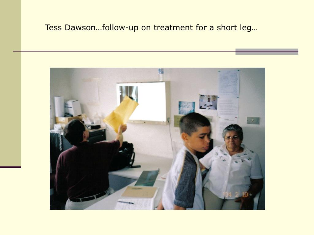 Tess Dawson…follow-up on treatment for a short leg…